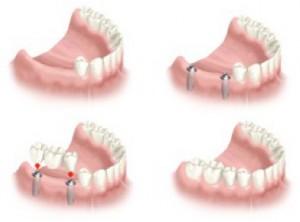 Αντικατάσταση περισσότερων δοντιών