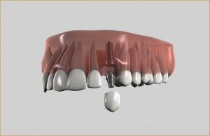 Αποκατάσταση ενός ελλείποντος δοντιού