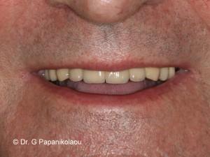 smile-teliko2