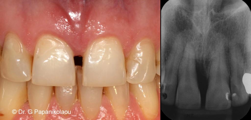 Αρχική εικόνα & ακτινογραφία. Βαθιά καταστροφή του οστού στον άνω κεντρικό τομέα που φαίνεται μόνο ακτινογραφικά.
