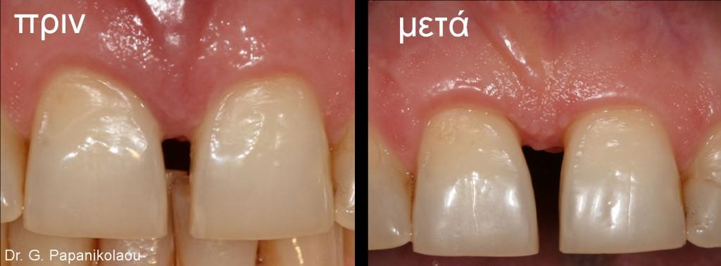 6 μήνες μετά έχουμε ελάχιστη αντι-αισθητική υφίζηση στο μπροστινό δόντι με τη βλάβη