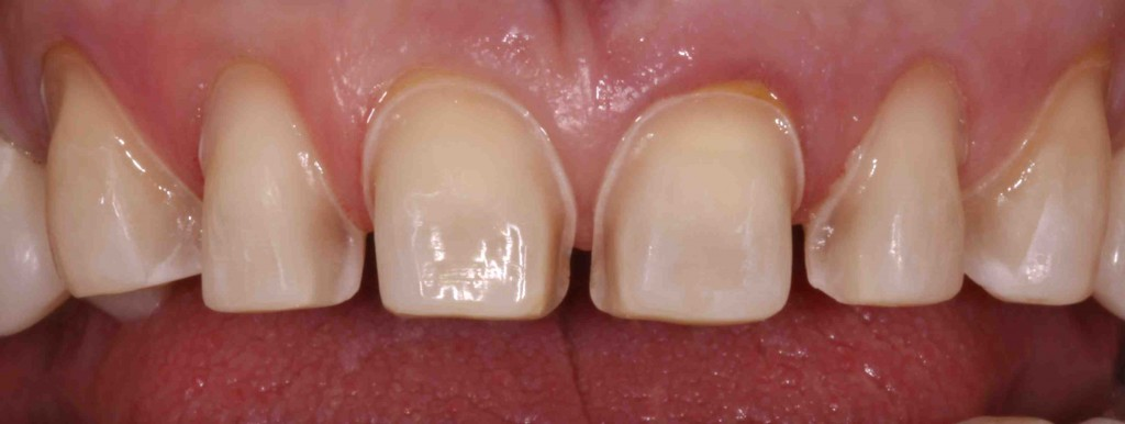 Συντηρητική παρασκευή για όψη πορσελάνης. Τροχίζεται μόνο το μπροστινό μέρος του δοντιού (όψη), διατηρώντας το υπόλοιπο σμάλτο.