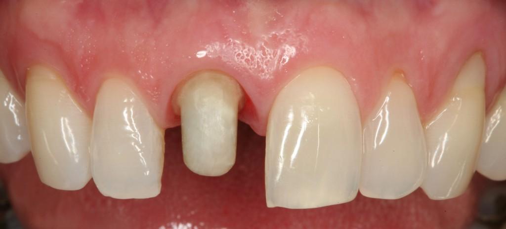 Παρασκευή δοντιού για να δεχτεί στεφάνη ολικής επικάλυψης. Έχει αφαιρεθεί όλο το φυσικό σμάλτο του δοντιού