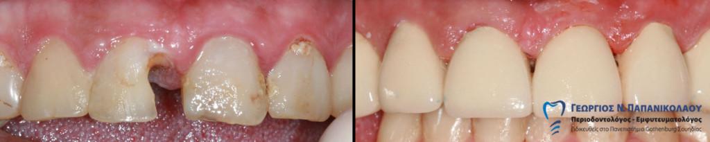 Δόντια με συσσωρευμένες βλάβες και ορατές αποκαταστάσεις., χρειάζονται ακόμη μεγαλύτερη παρέμβαση. Η πρόληψη σώζει.