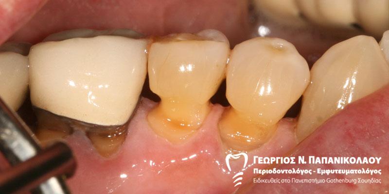 υποχώρηση ούλων, αποτριβή δοντιών
